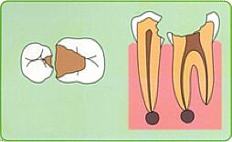 むし歯が重症化(C3~C4)